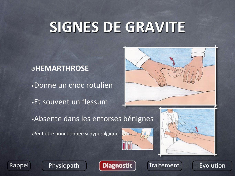 SIGNES DE GRAVITE HEMARTHROSE Donne un choc rotulien