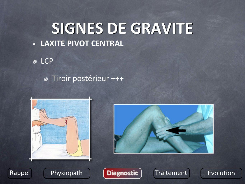 SIGNES DE GRAVITE LAXITE PIVOT CENTRAL LCP Tiroir postérieur +++