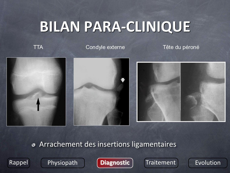 BILAN PARA-CLINIQUE Arrachement des insertions ligamentaires Rappel