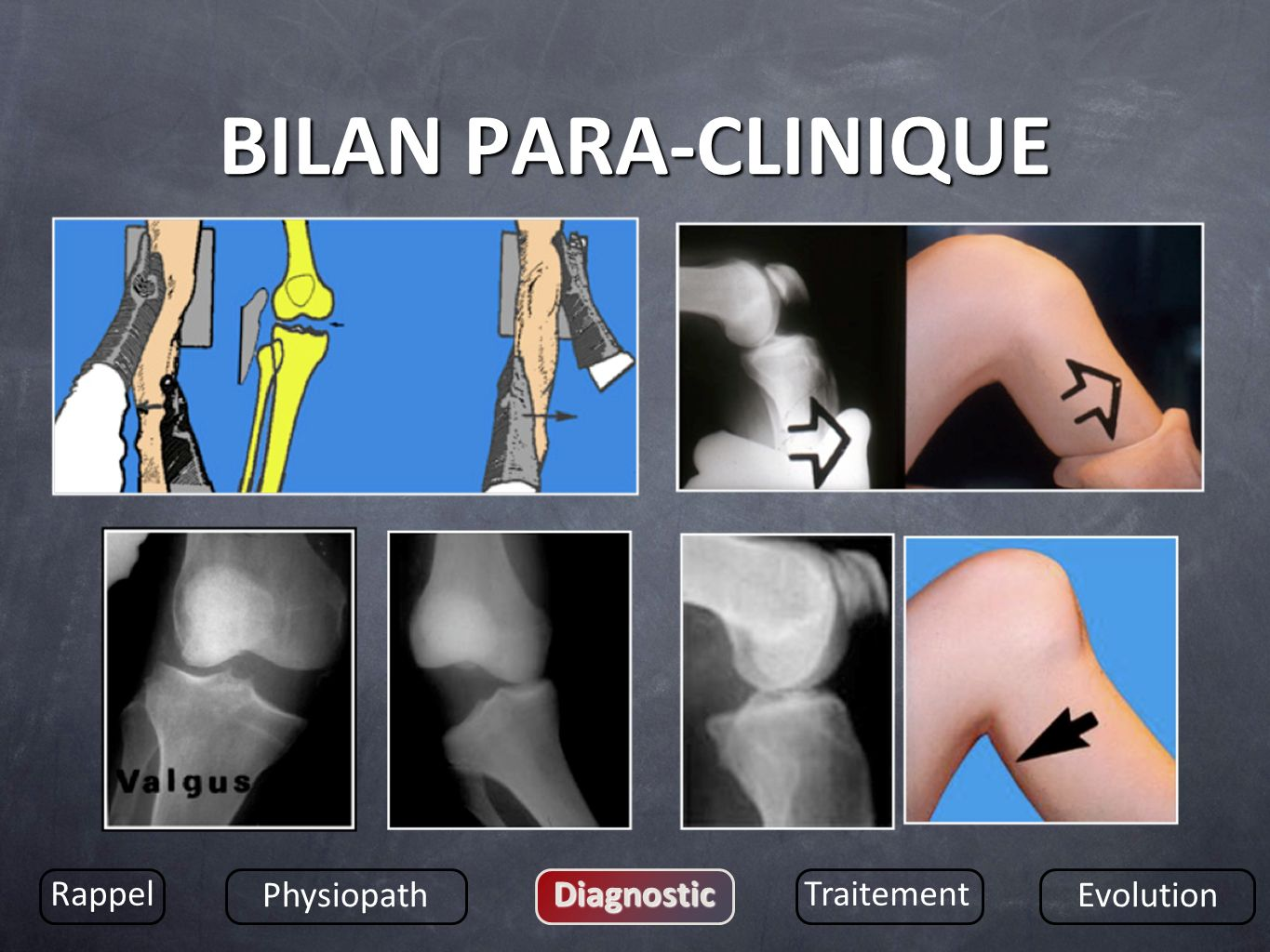 BILAN PARA-CLINIQUE Rappel Physiopath Diagnostic Traitement Evolution