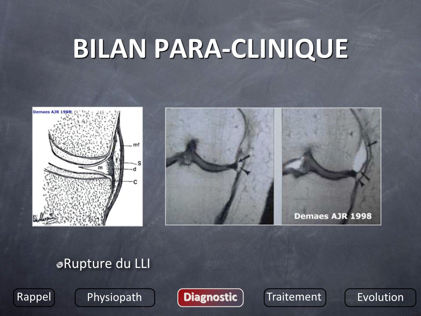 BILAN PARA-CLINIQUE Rupture du LLI Rappel Physiopath Diagnostic