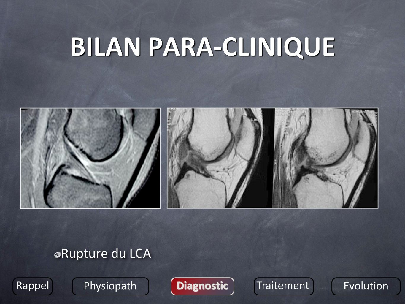BILAN PARA-CLINIQUE Rupture du LCA Rappel Physiopath Diagnostic