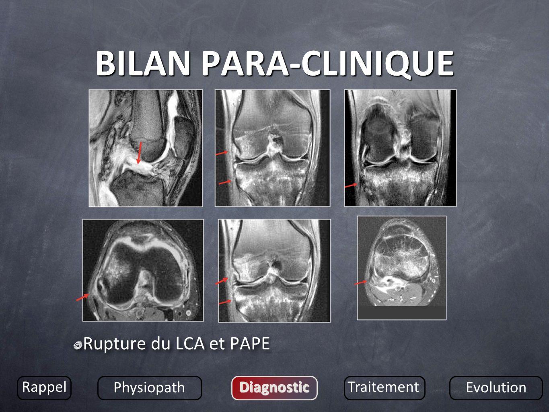 BILAN PARA-CLINIQUE Rupture du LCA et PAPE Rappel Physiopath