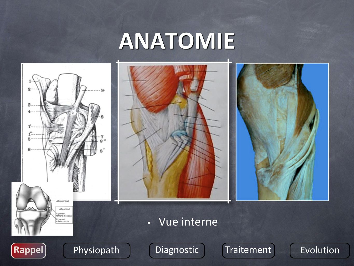 ANATOMIE Vue interne Rappel Physiopath Diagnostic Traitement Evolution