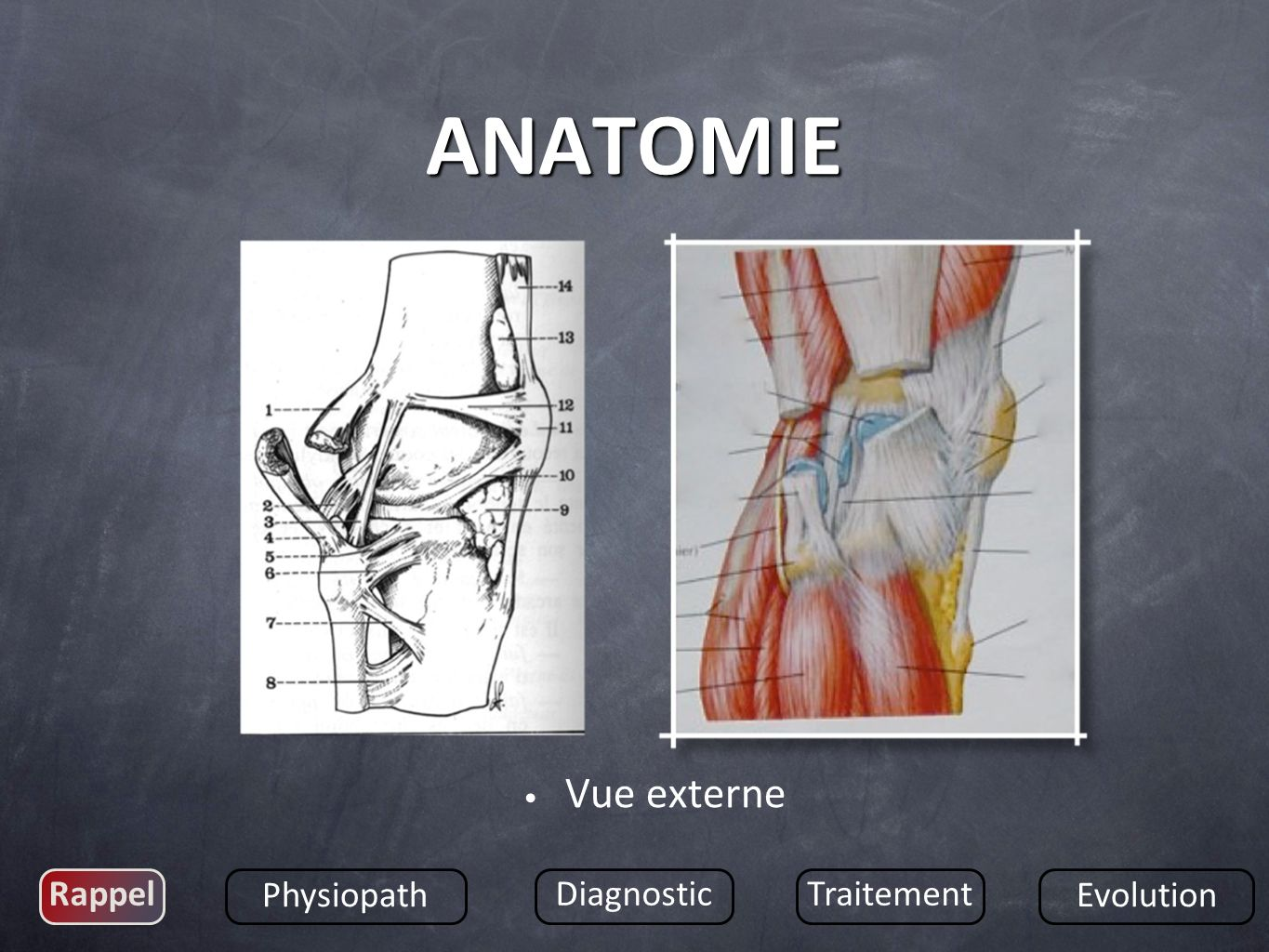 ANATOMIE Vue externe Rappel Physiopath Diagnostic Traitement Evolution