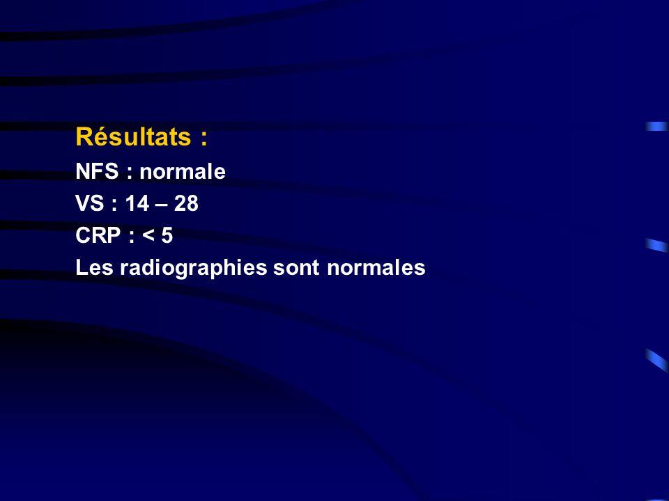 Résultats : NFS : normale VS : 14 – 28 CRP : < 5
