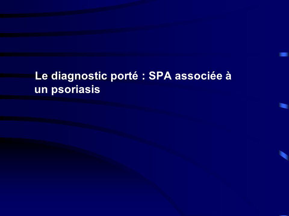 Le diagnostic porté : SPA associée à un psoriasis