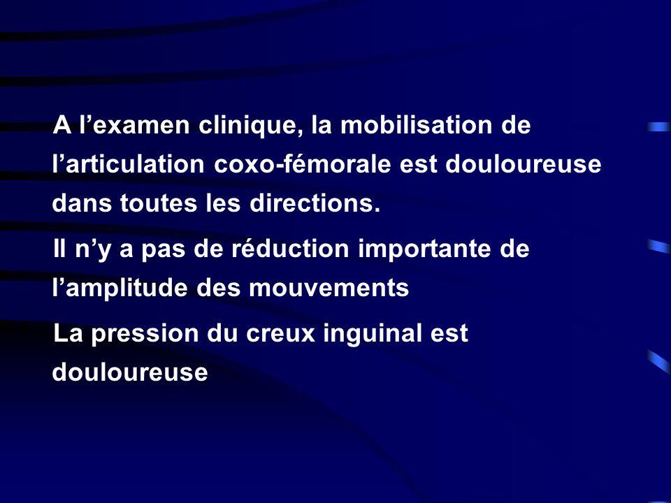 A l'examen clinique, la mobilisation de l'articulation coxo-fémorale est douloureuse dans toutes les directions.