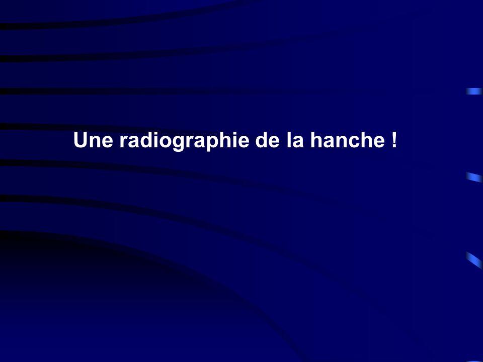 Une radiographie de la hanche !