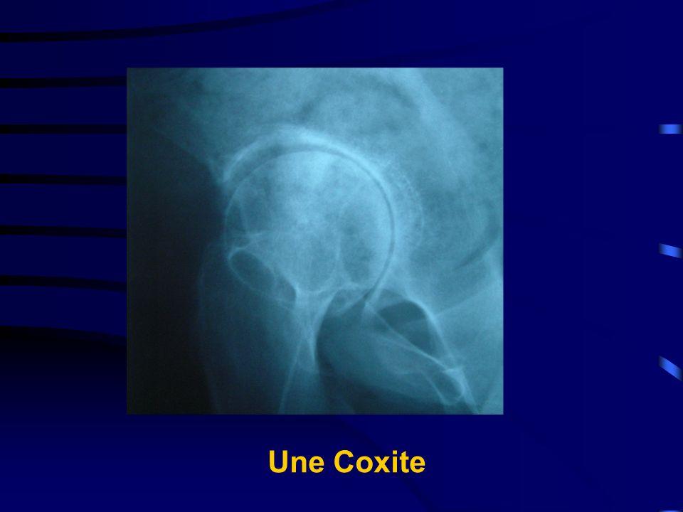 Une Coxite