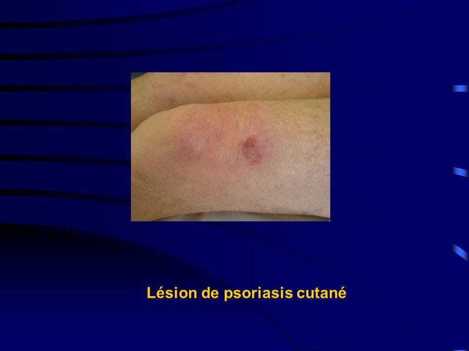 Lésion de psoriasis cutané