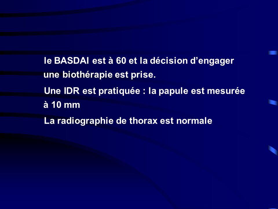 le BASDAI est à 60 et la décision d'engager une biothérapie est prise.