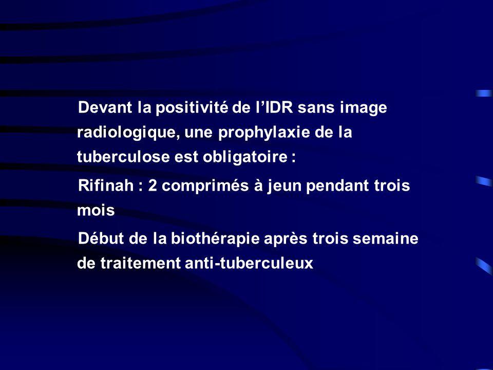 Devant la positivité de l'IDR sans image radiologique, une prophylaxie de la tuberculose est obligatoire :