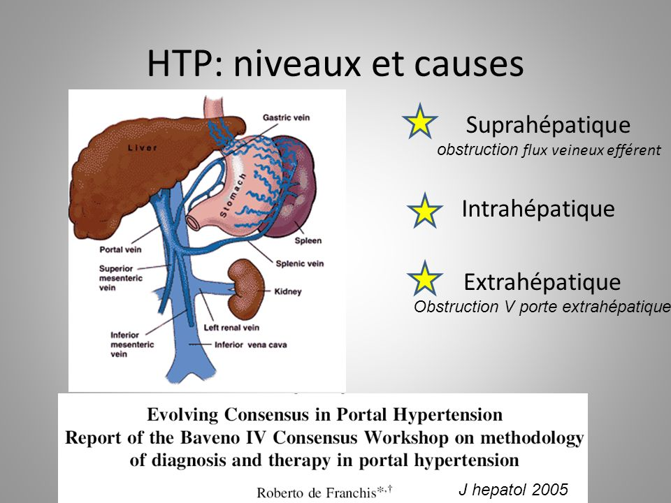 HTP: niveaux et causes Suprahépatique Intrahépatique Extrahépatique