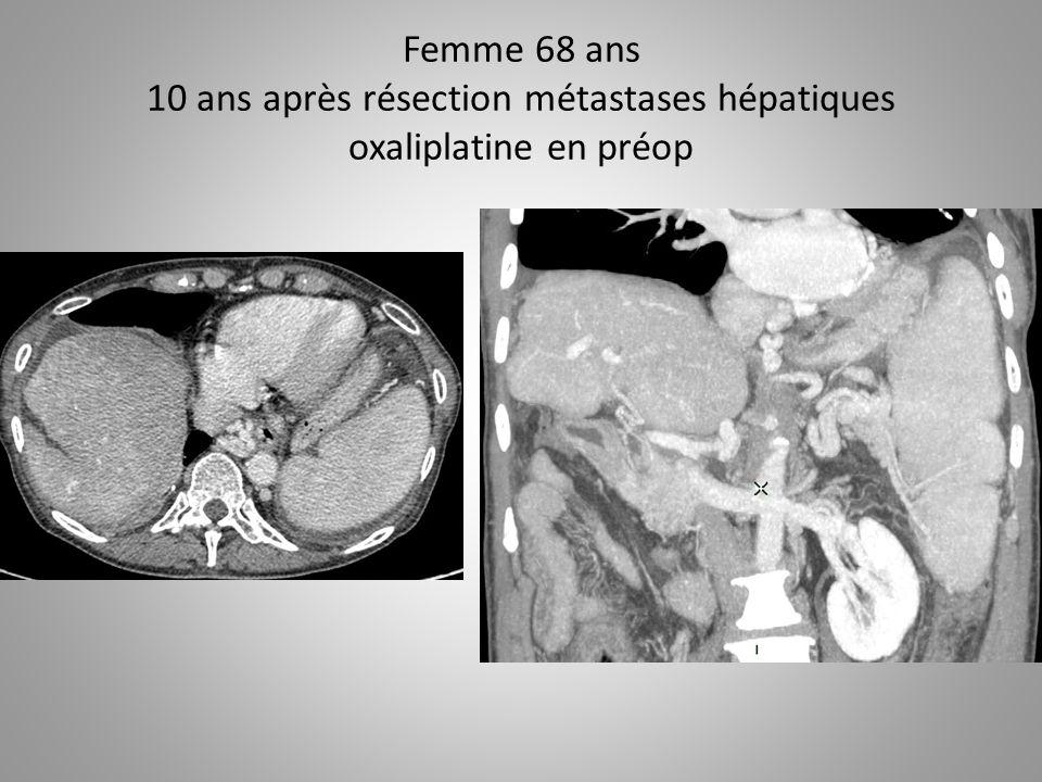 Femme 68 ans 10 ans après résection métastases hépatiques oxaliplatine en préop