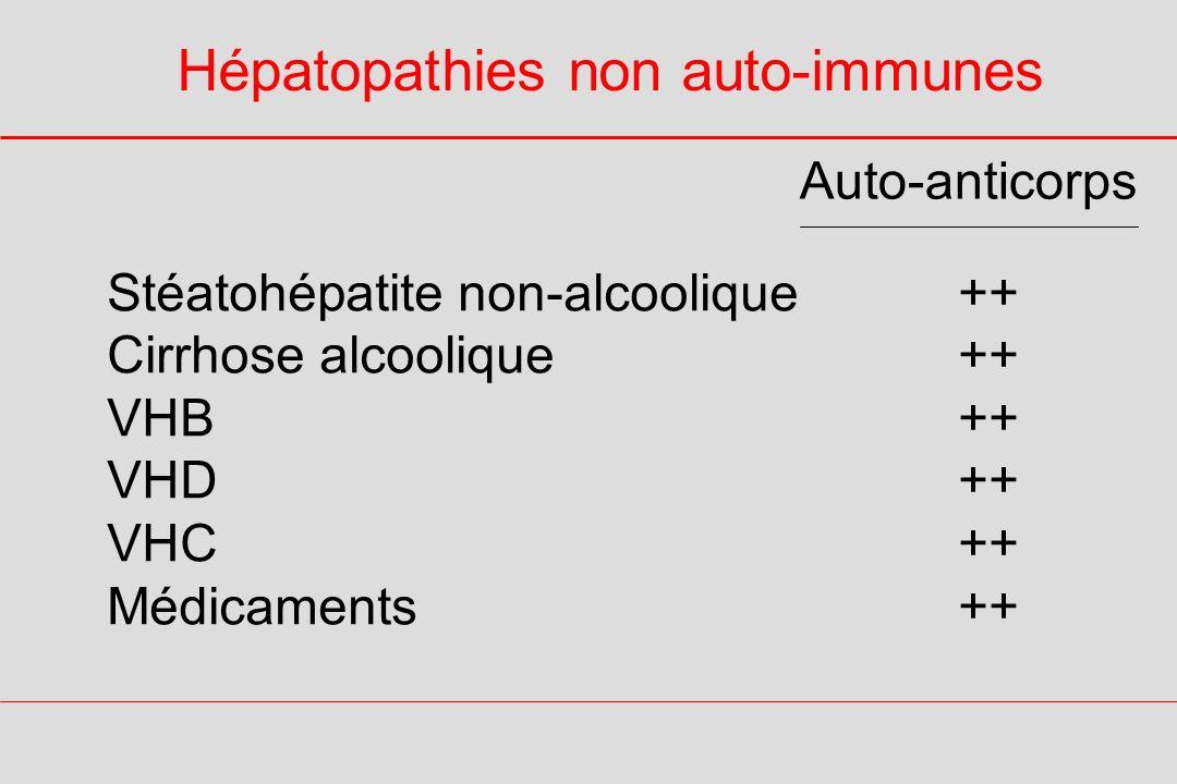 Hépatopathies non auto-immunes