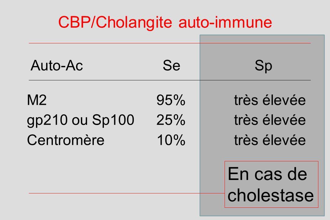CBP/Cholangite auto-immune