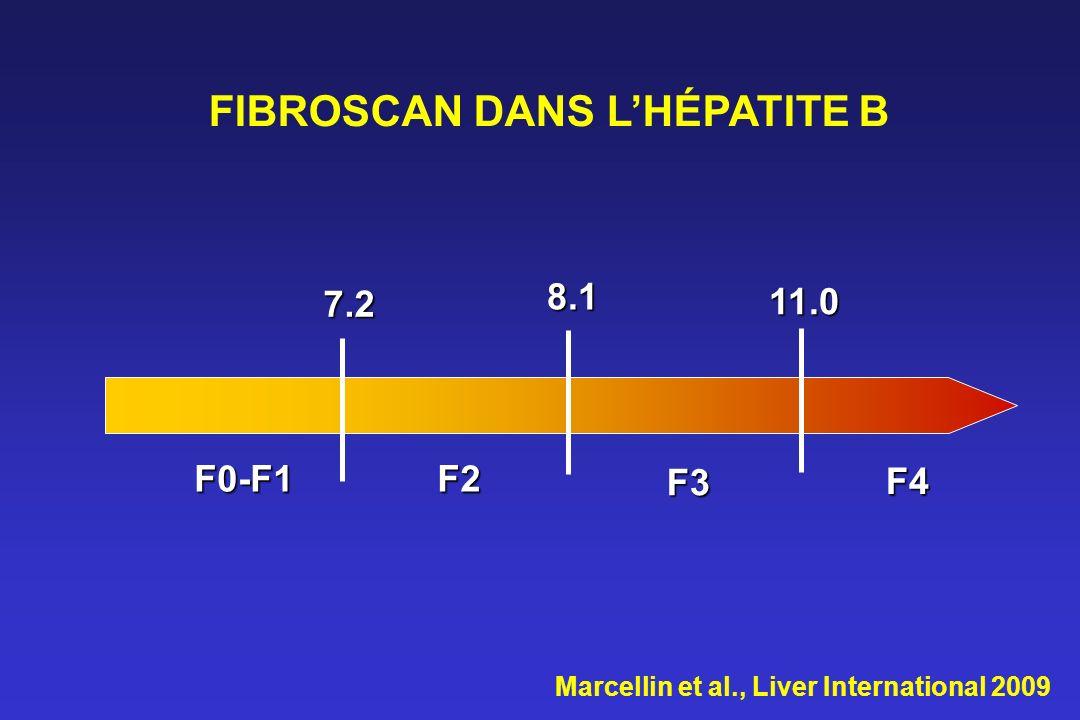 FIBROSCAN DANS L'HÉPATITE B