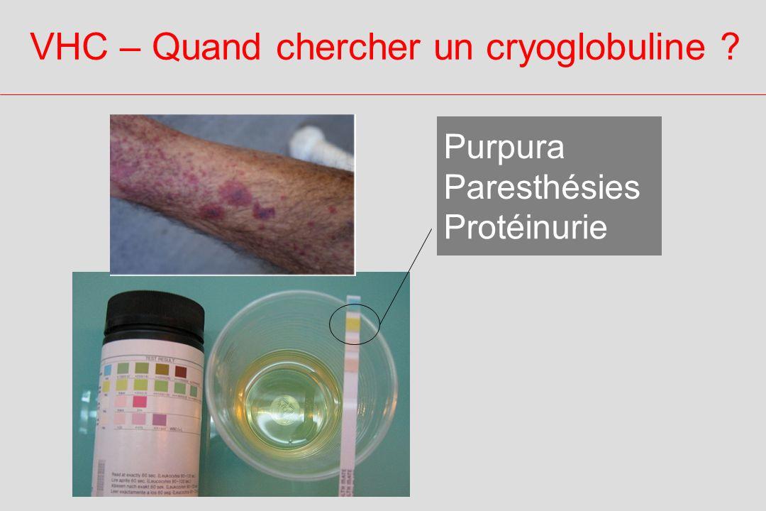 VHC – Quand chercher un cryoglobuline