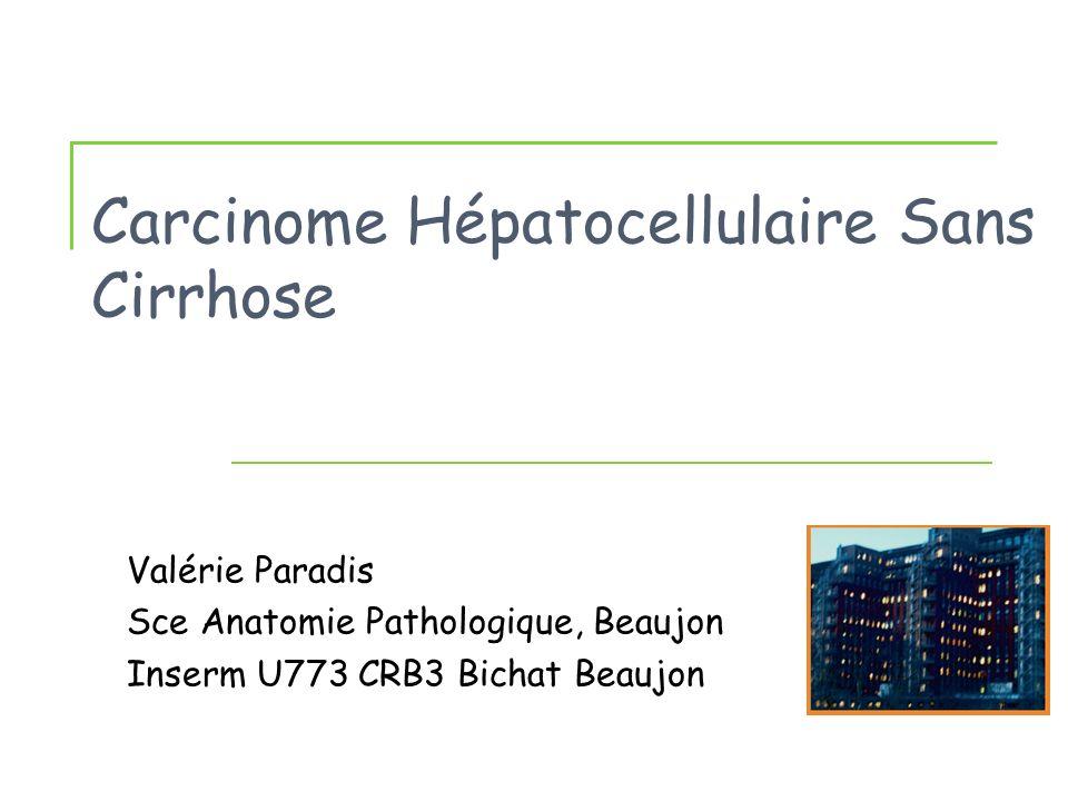 Carcinome Hépatocellulaire Sans Cirrhose