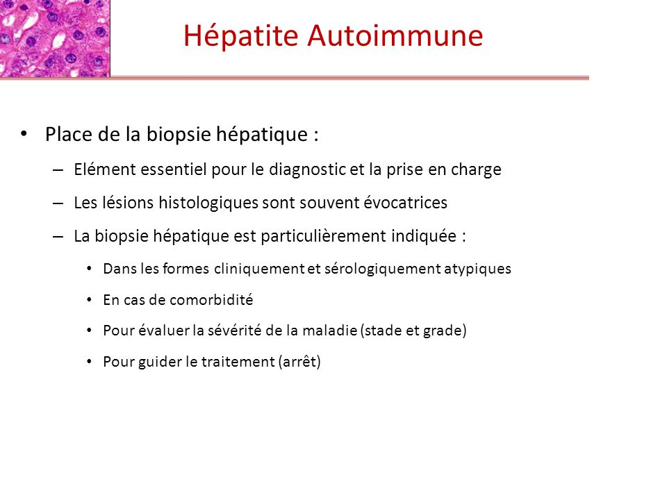 Hépatite Autoimmune Place de la biopsie hépatique :