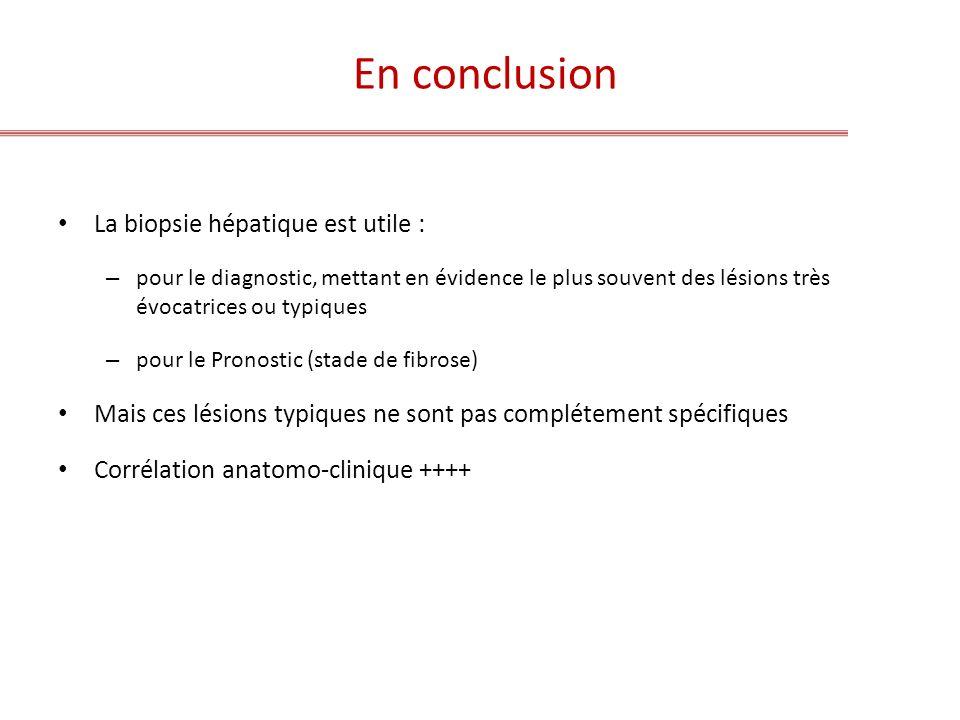 En conclusion La biopsie hépatique est utile :