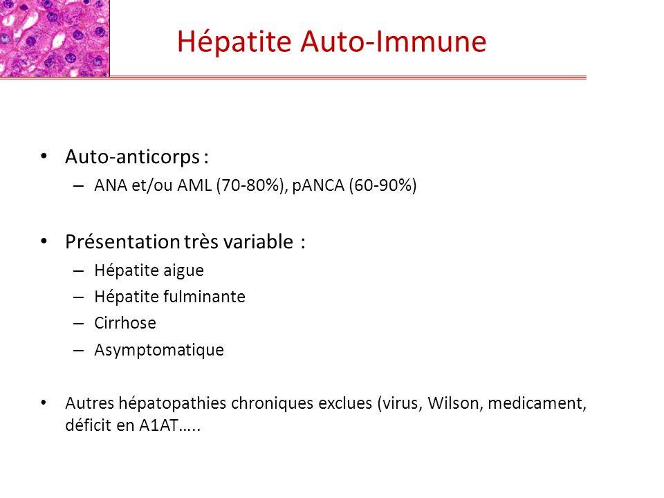 Hépatite Auto-Immune Auto-anticorps : Présentation très variable :