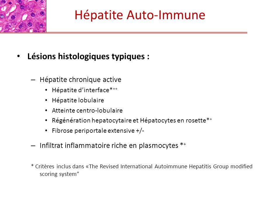 Hépatite Auto-Immune Lésions histologiques typiques :