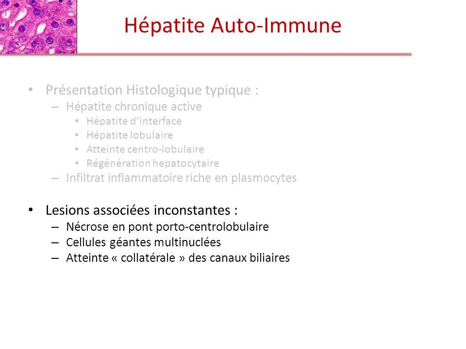 Hépatite Auto-Immune Présentation Histologique typique :
