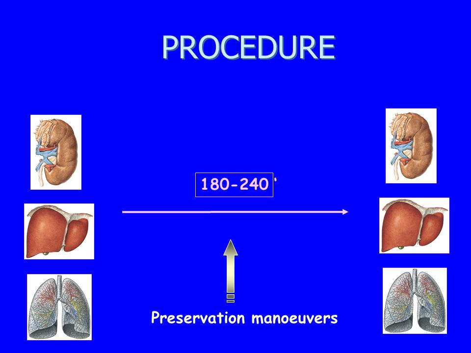 PROCEDURE 180-240 ' Preservation manoeuvers