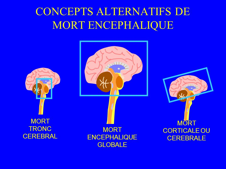 CONCEPTS ALTERNATIFS DE MORT ENCEPHALIQUE