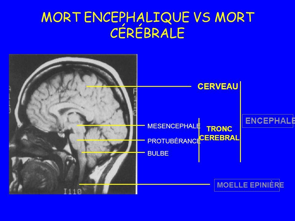 MORT ENCEPHALIQUE VS MORT CÉRÉBRALE