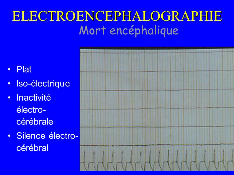 ELECTROENCEPHALOGRAPHIE