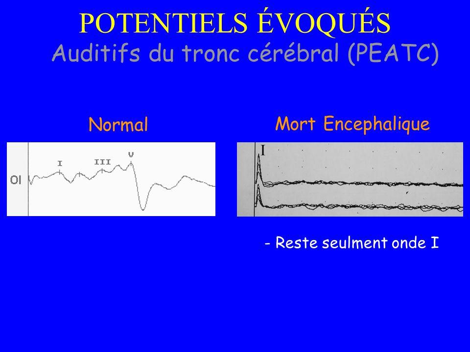Auditifs du tronc cérébral (PEATC)