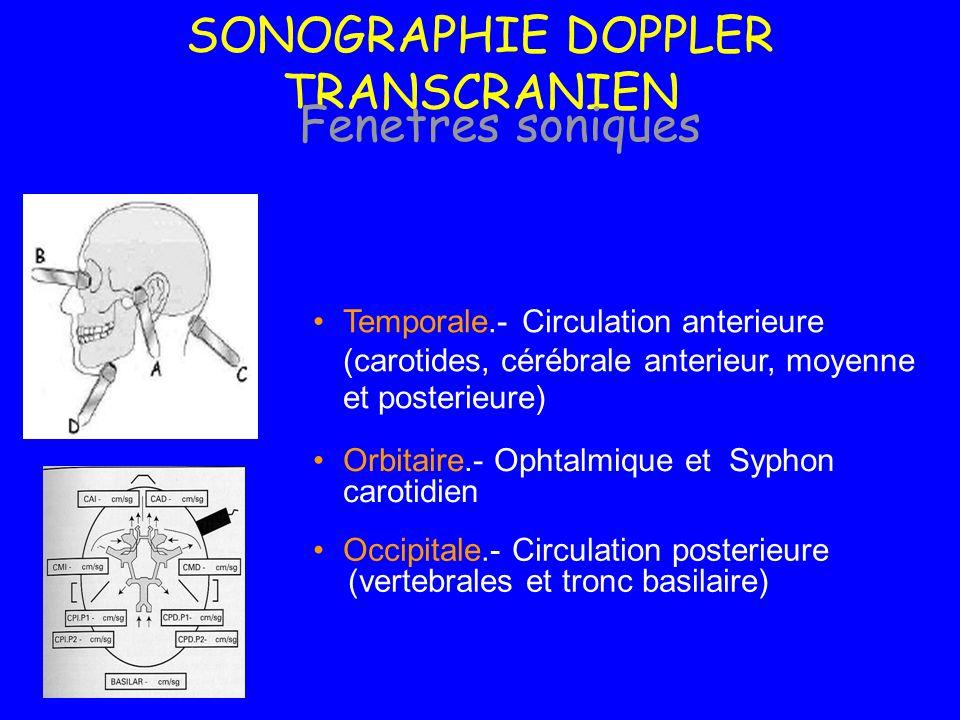 SONOGRAPHIE DOPPLER TRANSCRANIEN