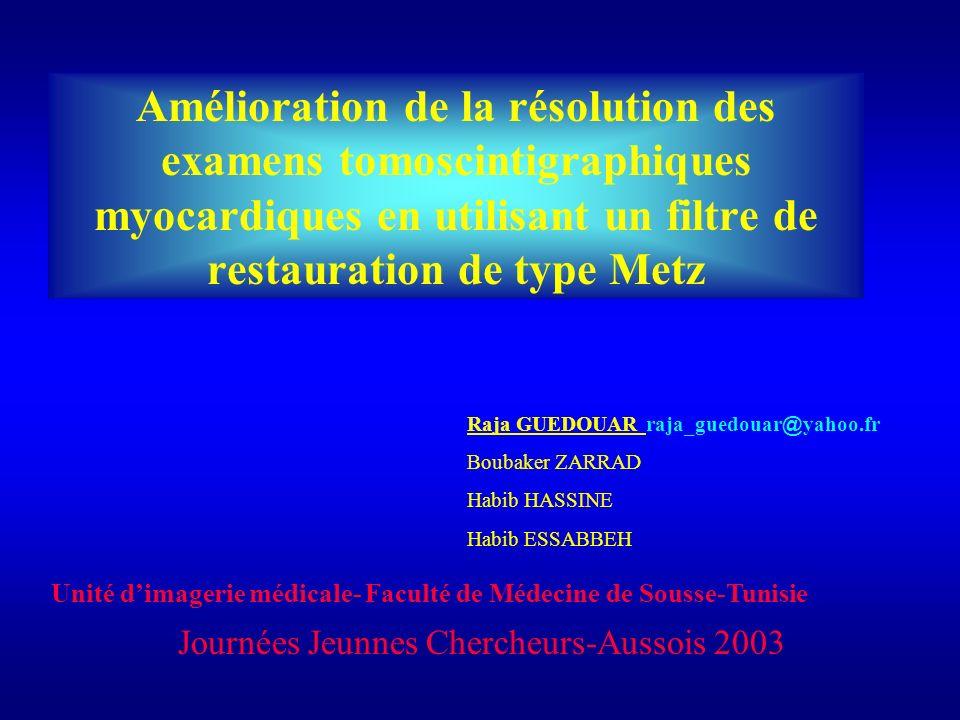 Amélioration de la résolution des examens tomoscintigraphiques myocardiques en utilisant un filtre de restauration de type Metz
