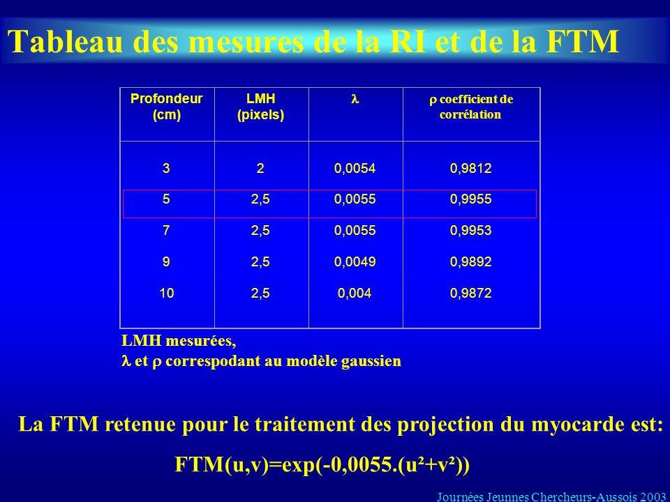 Tableau des mesures de la RI et de la FTM