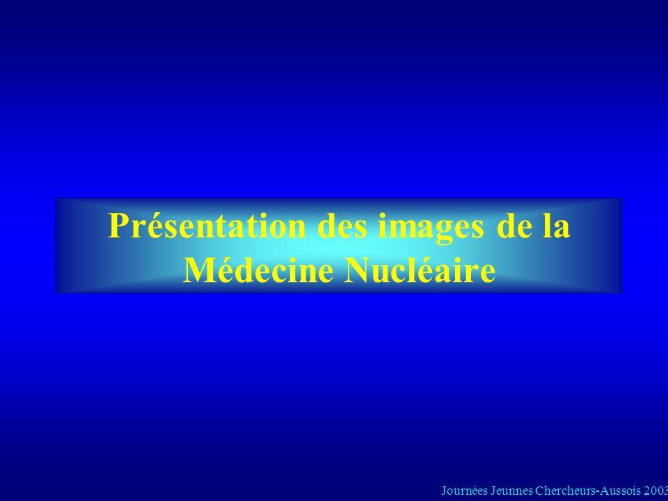 Présentation des images de la Médecine Nucléaire