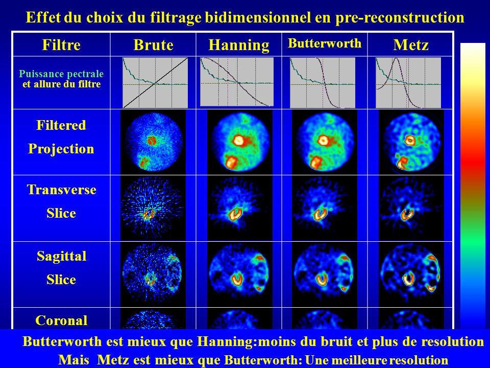 Effet du choix du filtrage bidimensionnel en pre-reconstruction Filtre