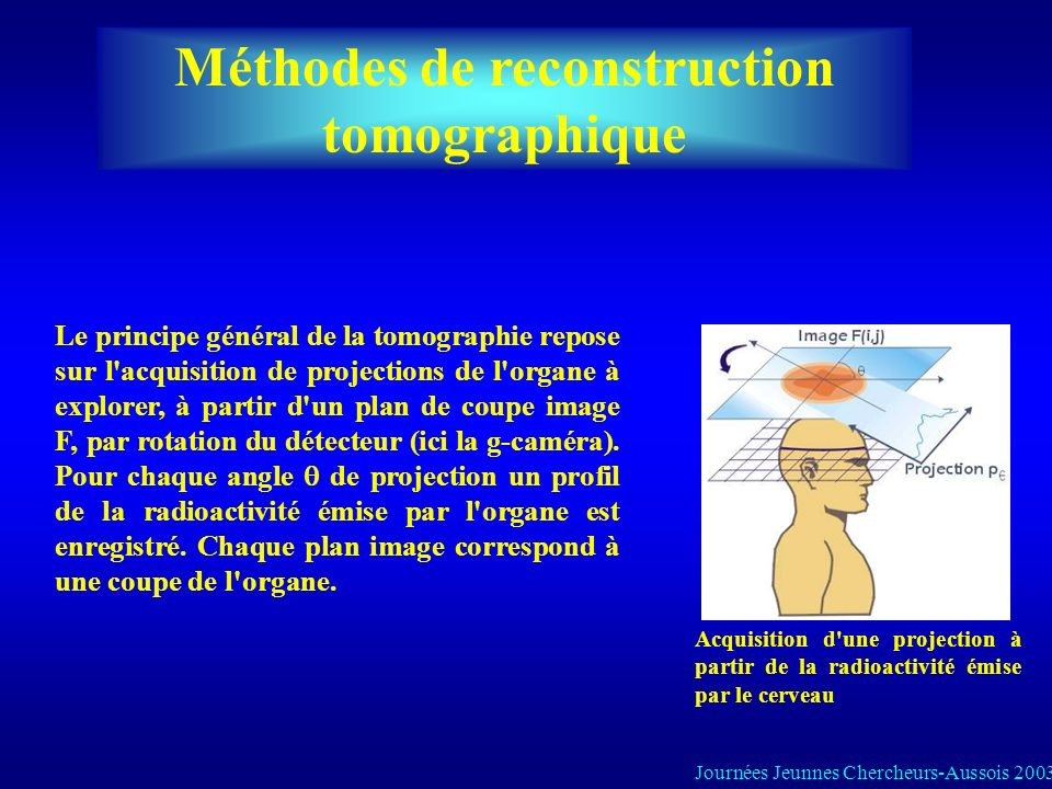 Méthodes de reconstruction tomographique