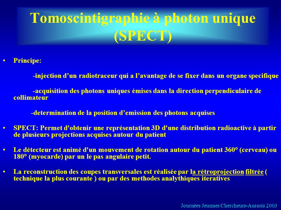 Tomoscintigraphie à photon unique (SPECT)