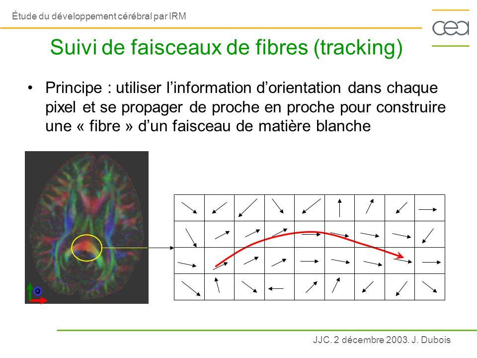 Suivi de faisceaux de fibres (tracking)
