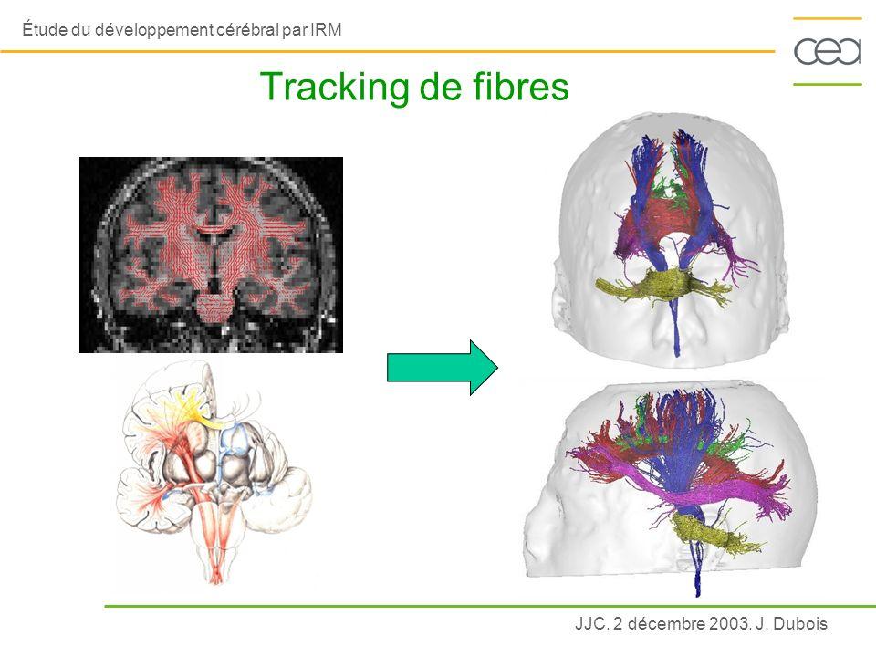 Tracking de fibres