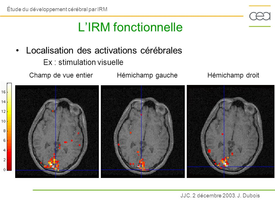 L'IRM fonctionnelle Localisation des activations cérébrales
