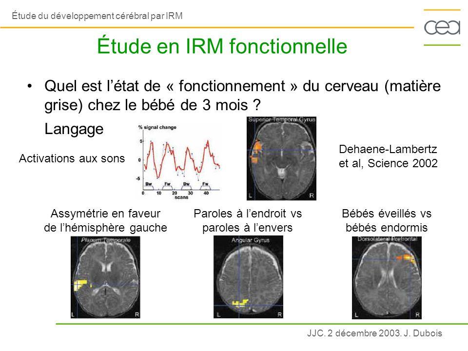 Étude en IRM fonctionnelle