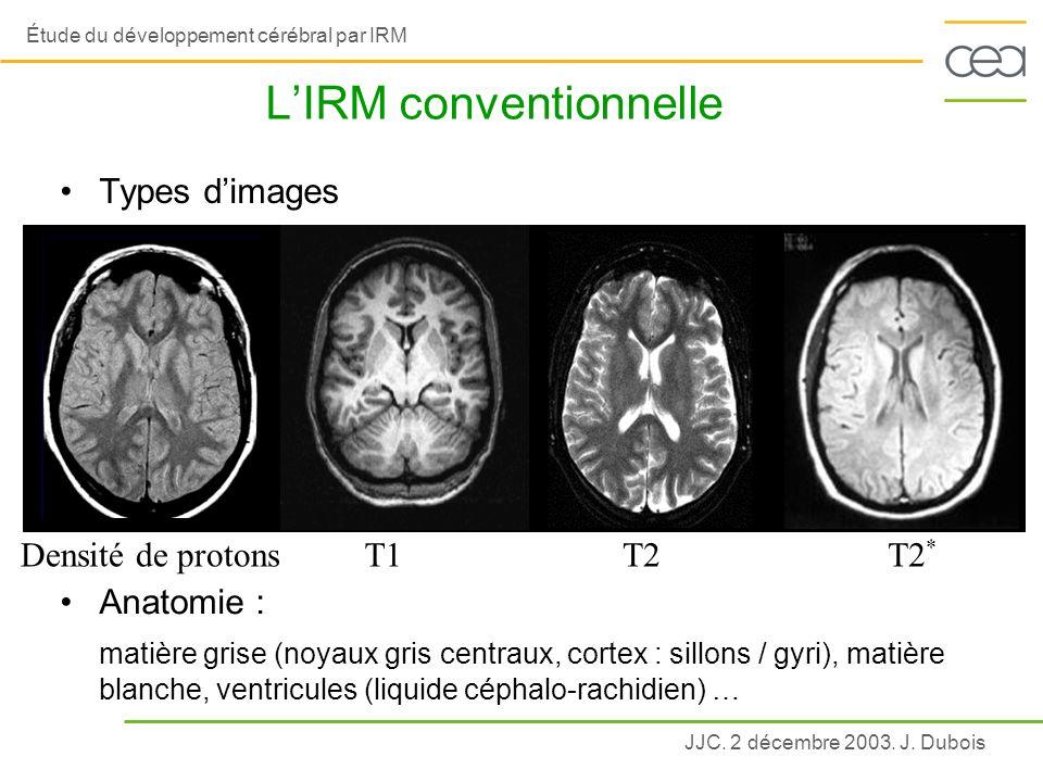 L'IRM conventionnelle