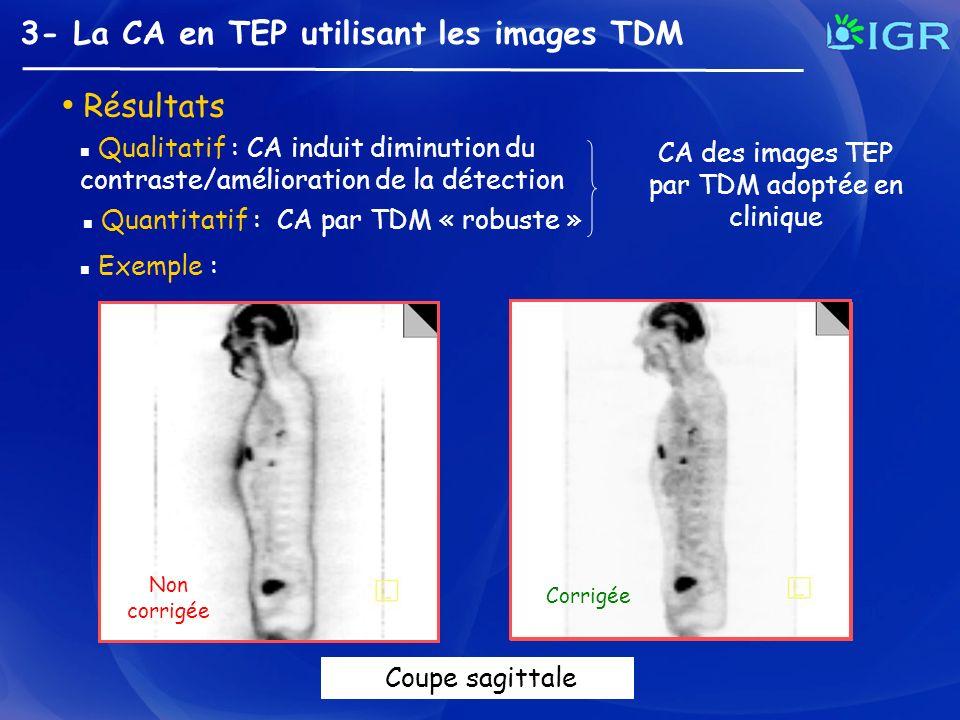 CA des images TEP par TDM adoptée en clinique