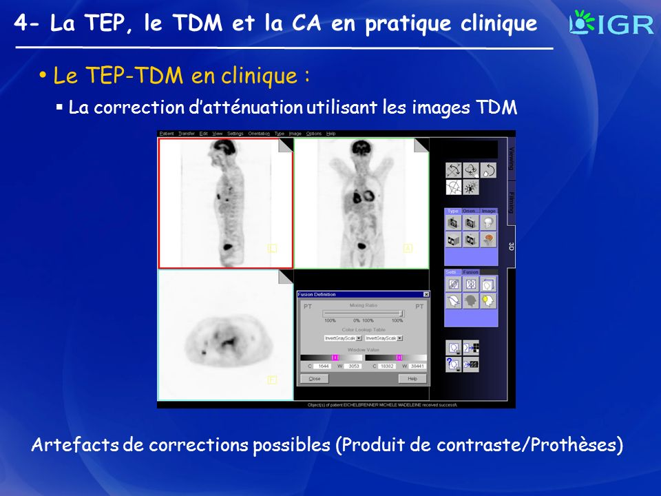 Le TEP-TDM en clinique :