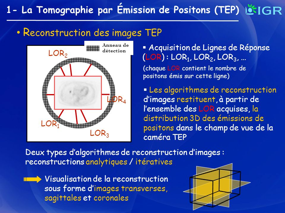 Reconstruction des images TEP