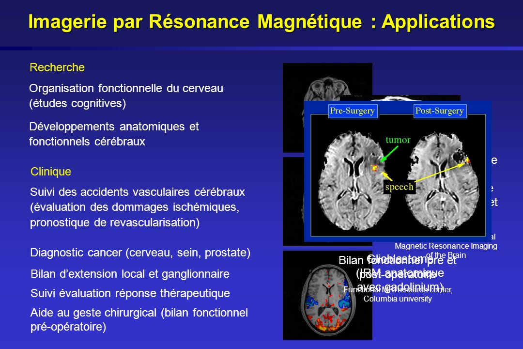 Imagerie par Résonance Magnétique : Applications